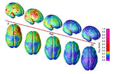 brain scan of teenage brain